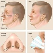 best Nose Reshaping in hyhderabad